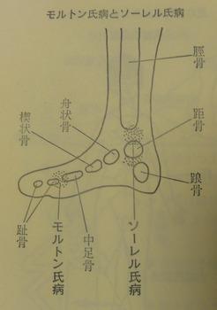 s-モルトン氏病とソーレル氏病.jpg